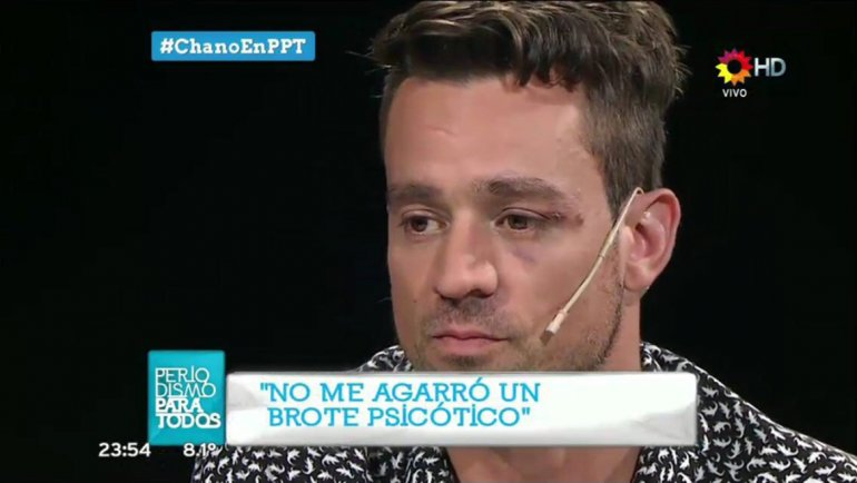 Chano: